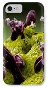 Plasmodium Gallinaceum, Sem IPhone Case by Science Source