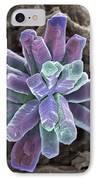 Calcium Phosphate Crystal, Sem IPhone Case by Steve Gschmeissner