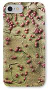 Fungal Spores, Sem IPhone Case