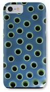 Saltwater Diatom IPhone Case