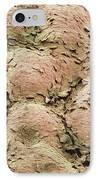 Skin Surface, Sem IPhone Case