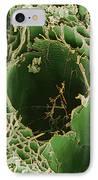 Rotten Wood, Sem IPhone Case by Dr Jeremy Burgess