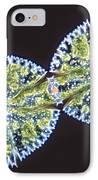 Micrasterias Denticulata IPhone Case