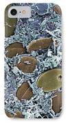 Diatom Algae, Sem IPhone Case