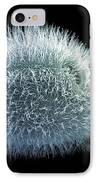 Paramecium Protozoan, Sem IPhone Case by Steve Gschmeissner