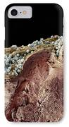 Pyoderma Skin Disease, Sem IPhone Case by Steve Gschmeissner