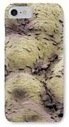 Skin Surface, Sem IPhone Case by Steve Gschmeissner