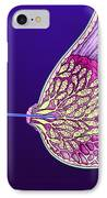 Breast Cancer Endoscope IPhone Case by Volker Steger