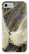 Chilodonella Ciliate Protozoan, Sem IPhone Case by Power And Syred