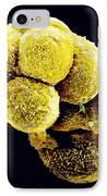 Coloured Sem Of An Embryo At The Stage Of Morula IPhone Case