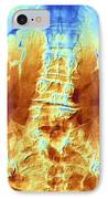 False-col X-ray Of Lumbar Spine Of Woman IPhone Case