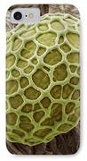 Freshwater Alga, Sem IPhone Case by Steve Gschmeissner