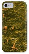 Potable Water Biofilm IPhone Case by Science Source