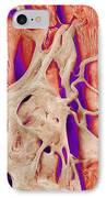 Trabeculae Carneae In The Heart, Sem IPhone Case by Susumu Nishinaga