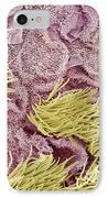 Uterine Cancer, Sem IPhone Case