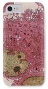 Leukaemia Cells, Tem IPhone Case by Steve Gschmeissner