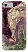 Skin Tissue, Sem IPhone Case by Steve Gschmeissner