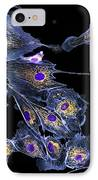Lung Cells, Fluorescent Micrograph IPhone Case