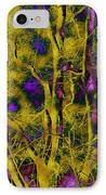 Tree Glow IPhone Case