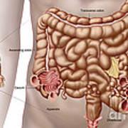 Diverticulitis In The Descending Colon Poster by Stocktrek Images