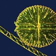 Green Algae, Light Micrograph Poster by Science Photo Library