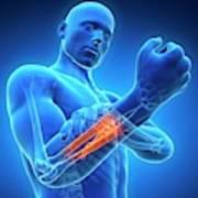 Human Arm Pain Poster