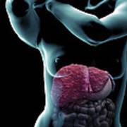 Liver Cirrhosis Poster