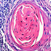 Squamous Cell Carcinoma, Keratin Pearl Poster