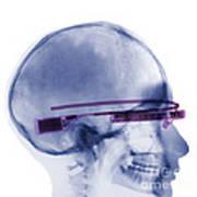 Woman Wearing Google Glass X-ray Poster