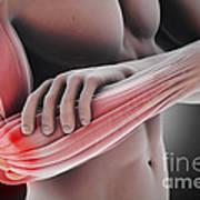 Tennis Elbow Poster