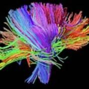 White Matter Fibres Of The Human Brain Poster