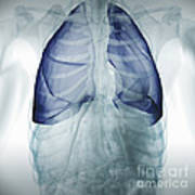 Lungs Within The Chest Poster