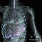 X-ray Anatomy Poster