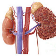 Polycystic Kidney Poster