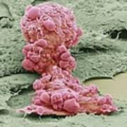 Mesenchymal Stem Cell, Sem Poster by Science Photo Library