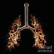 Bronchial Branches Poster