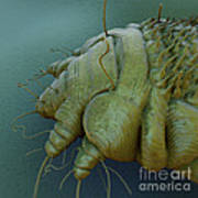 Scabies Mite Poster