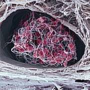 Blood Clot Poster by Science Photo Library