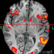 Brain Activity During Language Task, 2 Poster