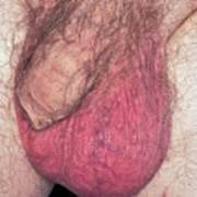 Epididymo-orchitis From Self Catheterisation Poster