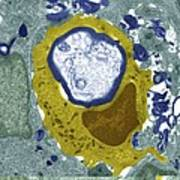 Macrophage Engulfing A Nerve Cell, Tem Poster