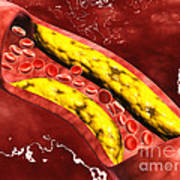 Microscopic View Of Fat Plaque Poster