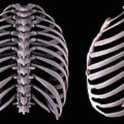 Multiple View Of The Rib Cage Poster