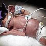 Nicu Miracle Baby Poster