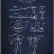 Pelvic Measuring Device Patent From 1963 - Navy Blue Poster