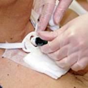 Replacing Tracheostomy Tube Poster