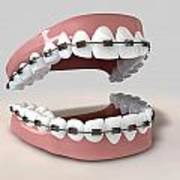Teeth Fitted With Braces Poster by Allan Swart