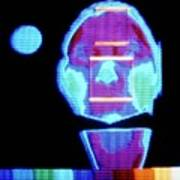 Thermogram Of Face Prior To Taking Alcoholic Drink Poster