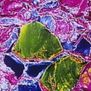 Thyroid Gland, Sem Poster