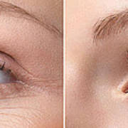 Womans Eye With And Without Wrinkles Poster